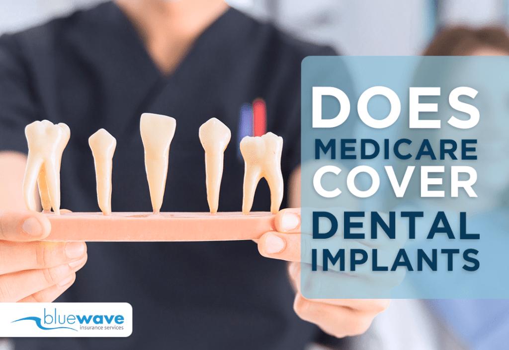 does Medicare cover dental implants?